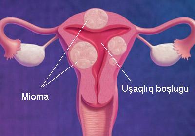 Mioma və hamiləlik